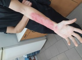 ošetření popáleniny